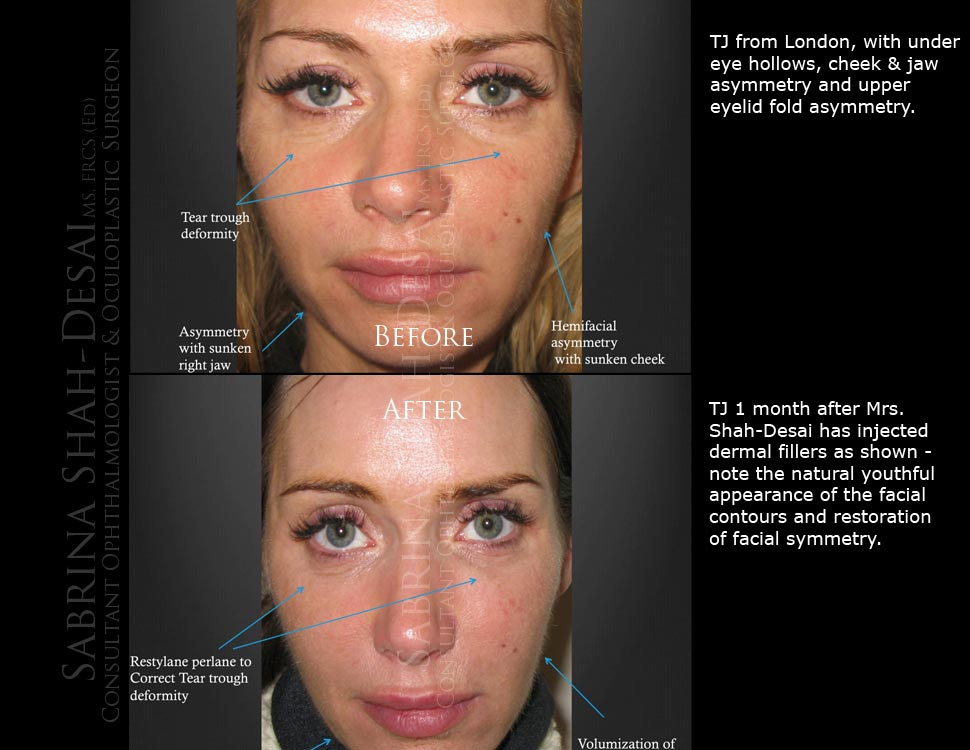 Case 1: Liquid Face Lift