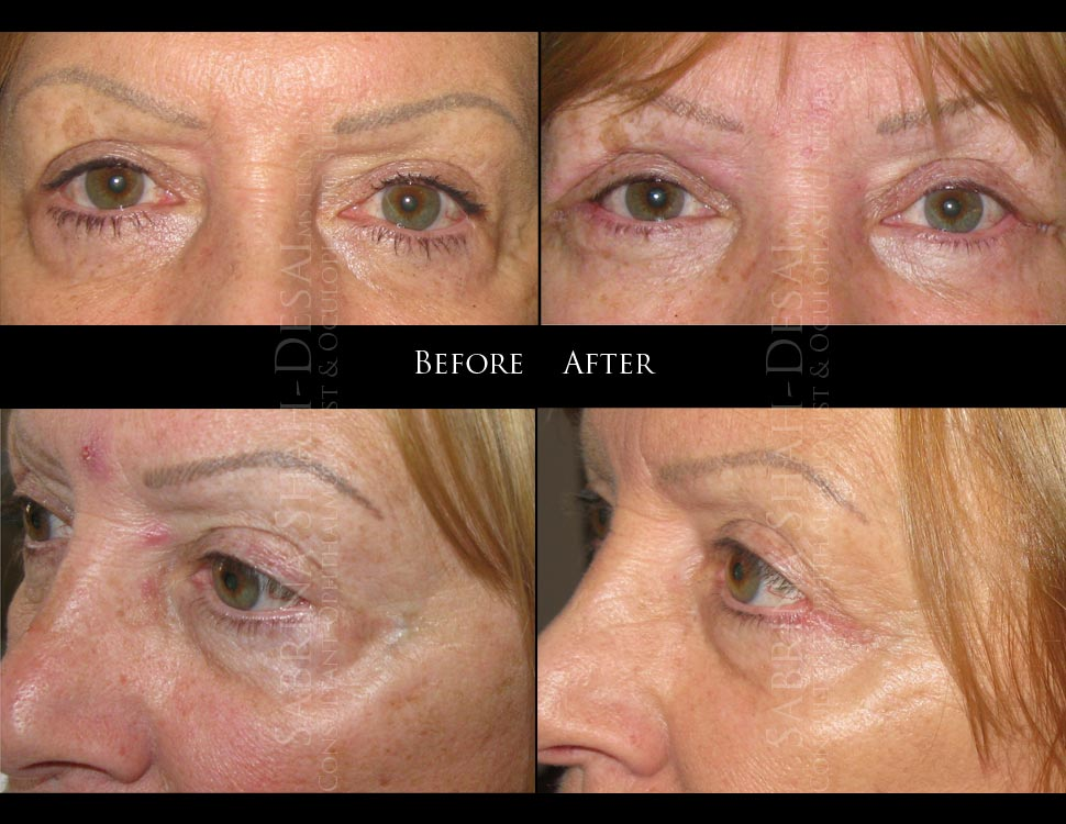 Remove Eye Bags Removal Surgery Reduce Eye Bags Under Eyes Lower ...