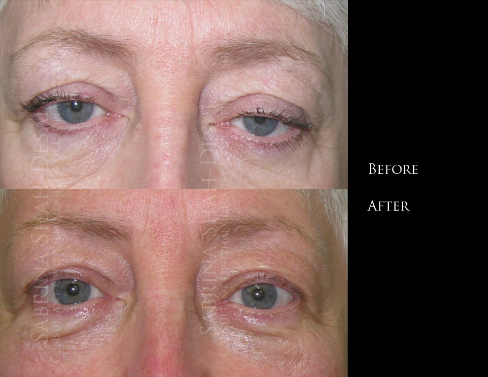 Scarless Ptosis Surgery Ptosis repair Eyelid Surgery Eye lid ...