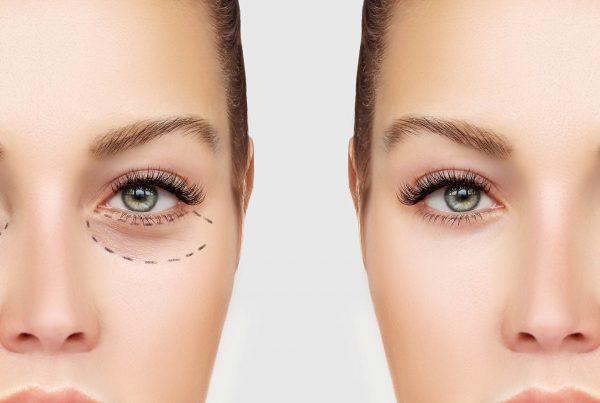 Asian Eyelid Surgery Double Eyelid Surgery Eyelid Surgeon