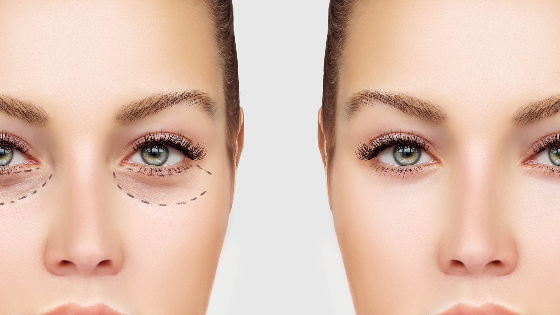 ba47ec773e6 Natural Looking Eye Bag Surgery | By Leading Cosmetic Eye Surgeon