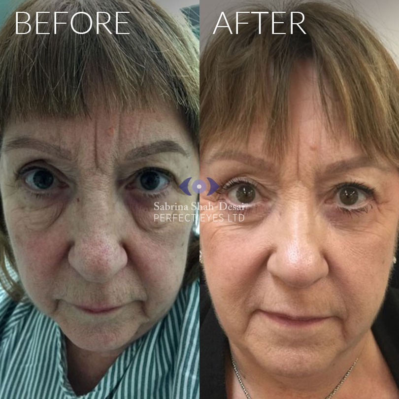 Natural Looking Eye Bag Surgery | By Leading Cosmetic Eye
