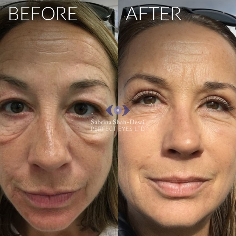 Natural Looking Eye Bag Surgery By Leading Cosmetic Eye Surgeon