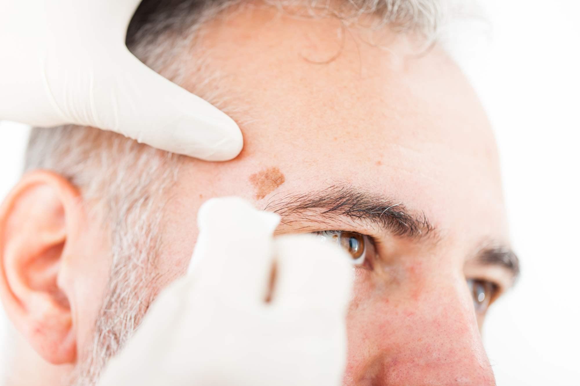 Mohs Surgery Skin Cancer Surgery Skin Cancer Treatment