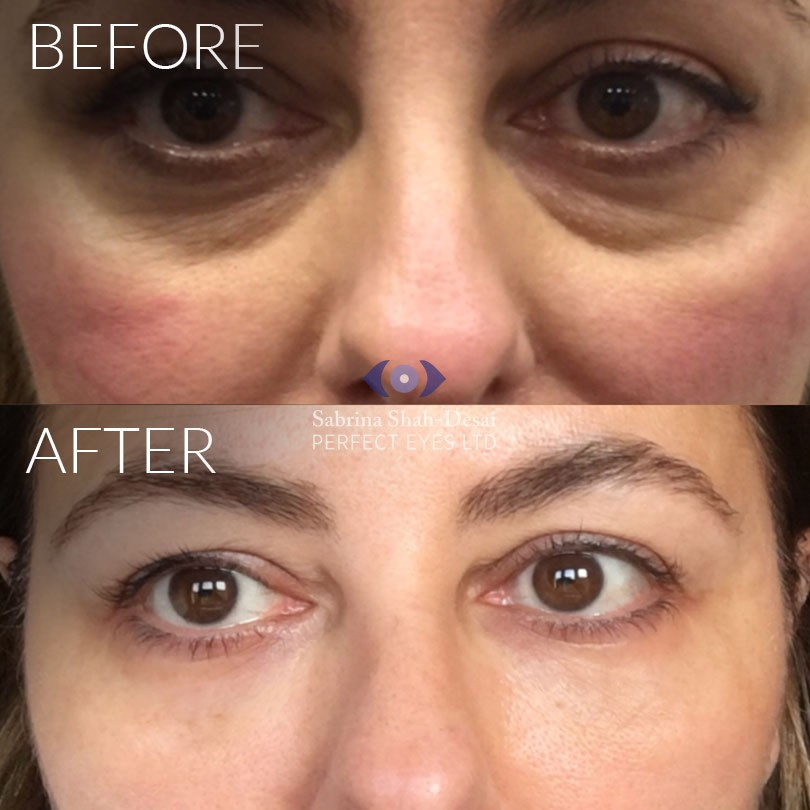 Tear trough fillers results