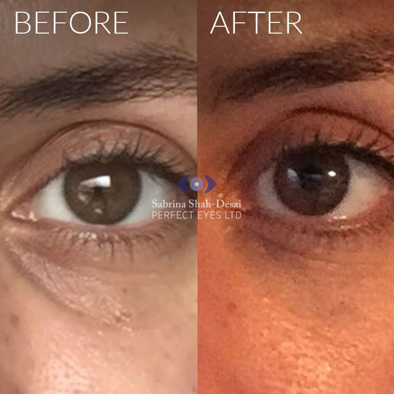 Tear Trough Fillers - Effective For Dark Circles, Eye Bags