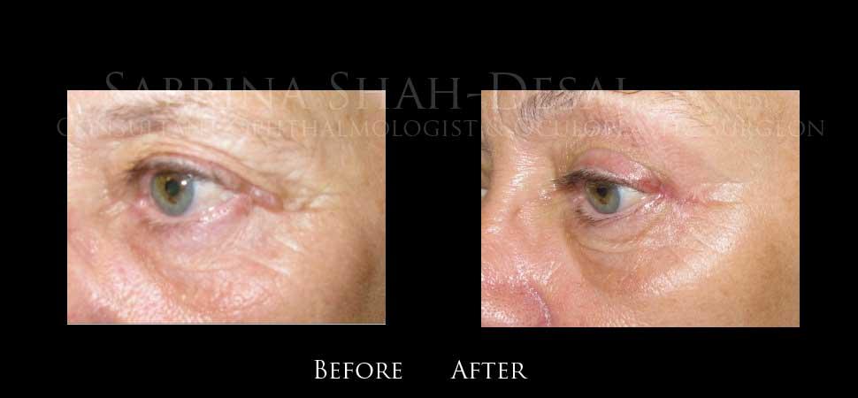 Bump on Eyelid Lumps Lump on Eyelid Bumps Eyelid Surgery