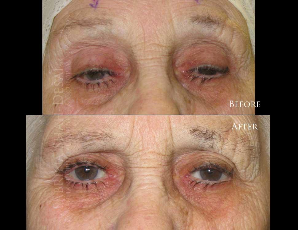 Scarless Ptosis Surgery | London's Leading Cosmetic Eye Surgeon