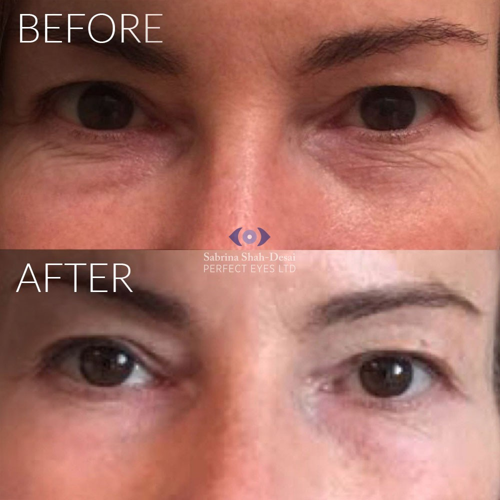 Tixel Rejuvenation - Leading Specialists In London | Perfect