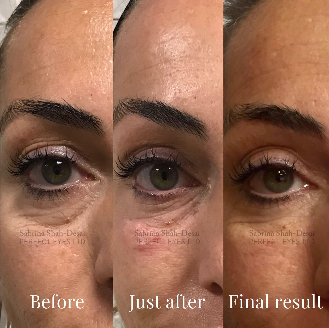 tear trough fillers recovery