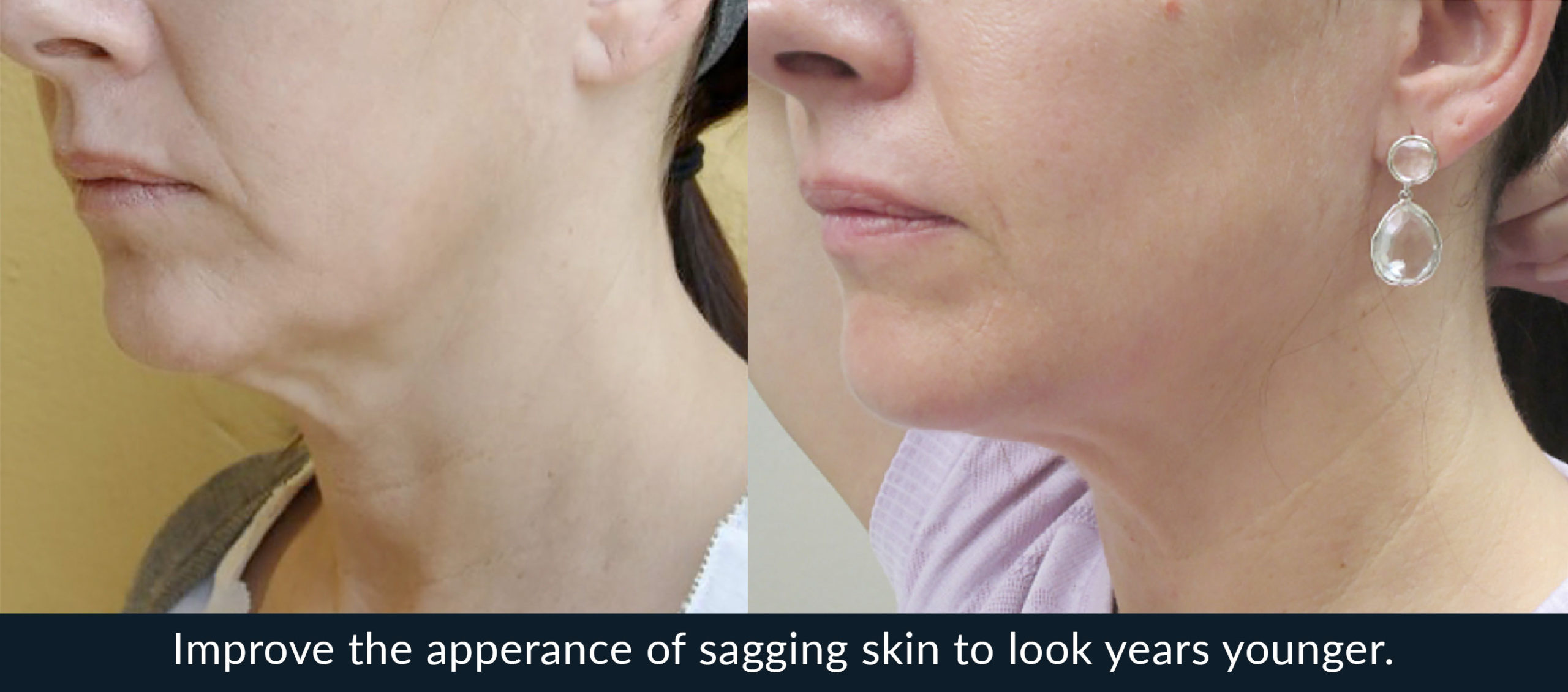 Morpheus 8 before and after skin tightening
